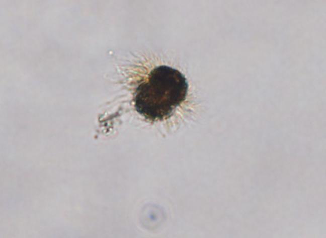 A microscopic image of the single-celled protozoan, Mesodinium rubrum. Credit: NOAA.