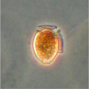 The distinctly shaped dinoflagellate Dinophysis acuminate has a flat or convex top and a rounded bottom with a side wing. D. acuminate produces dinophysis toxins and okadaic acid causing Diarrhetic Shellfish Poisoning in humans. Credit Vera Trainer, NOAA NMFS