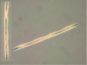 NCCOS Research Supports Review of Pseudo-nitzschia in California