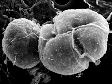 Algae with Mixed Feeding Capabilities May have Advantage Forming Blooms